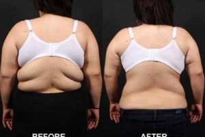How To Get Rid Of Back Fat At Home - 4 Easy Tips !